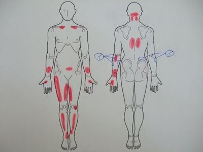 腰痛、肘の痛み