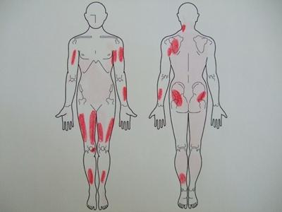線維筋痛症、全身の痛み