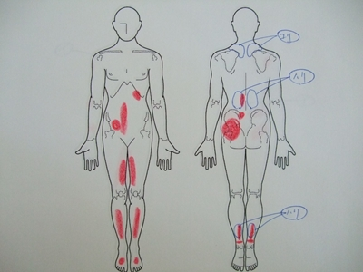 肩こり、背中の痛み、腰痛、足の痛み