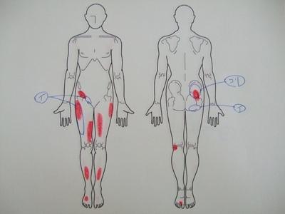 坐骨神経痛、足の痛み