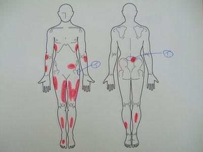 腰痛、股関節痛、外反母趾、内反小趾