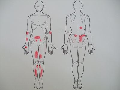 アトピー性皮膚炎、生理痛