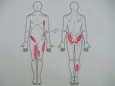 腰痛、側湾症