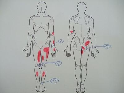 腰痛、膝の痛み、手首の痛み