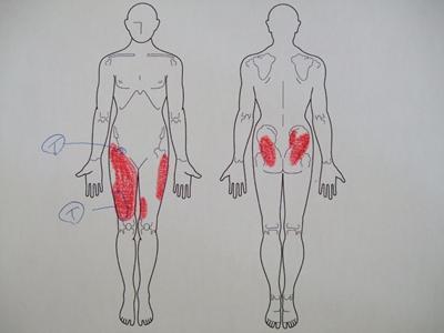 打撲、股関節痛