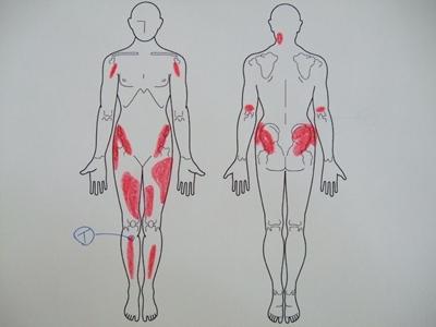 オスグッド病、膝の痛み