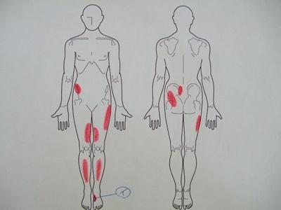 有痛性外脛骨、足の痛み