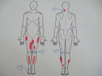 半月板損傷、膝の痛み、足の痛み