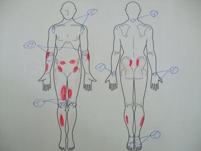関節リウマチ、肩の痛み、首の痛み、手の痛み、膝の痛み、足の痛み