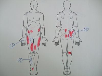 坐骨神経痛、おしりの痛み、足の痛み
