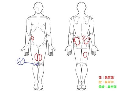 半月板損傷,膝の痛み