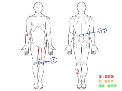 膝の痛み,半月板損傷