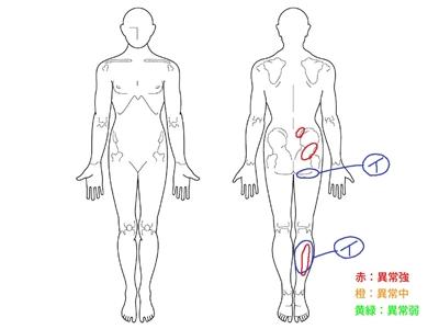 腰痛,腰椎椎間板ヘルニア,足のしびれ