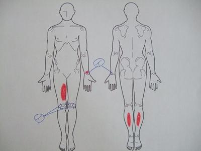 腱鞘炎,腰痛,膝の痛み