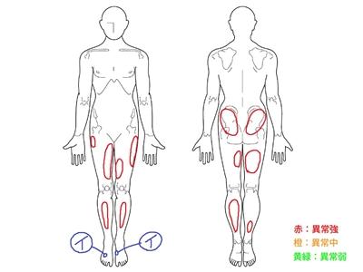 有痛性外脛骨,足の甲の痛み