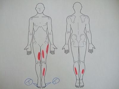 内反小趾,足の痛み