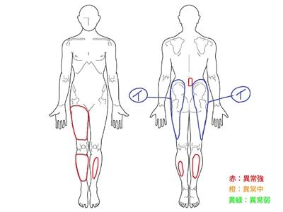 脊柱管狭窄症,腰痛,おしりの痛み,足の痛み