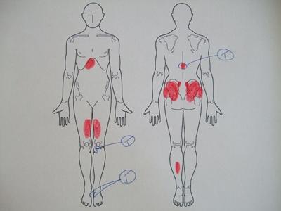 有痛性外脛骨,腰痛,背中の痛み,膝の痛み