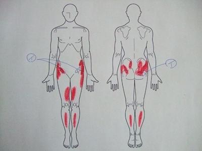 変形性股関節症,股関節痛