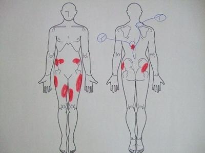 側弯症,側わん症