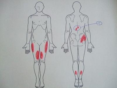 ぎっくり腰,背中の痛み