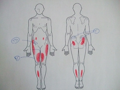 股関節痛,腰痛,足の痛み