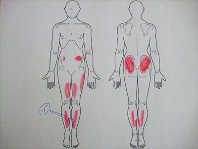 シンスプリント,足の痛み