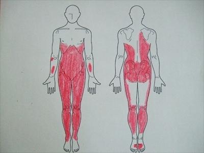 慢性疲労症候群,原因不明の症状