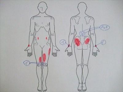 手首の痛み,腱鞘炎