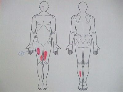 肉離れ,足の痛み