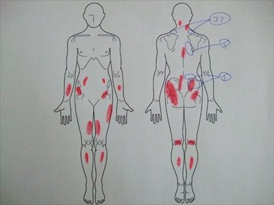 肩こり,腰痛,背中の痛み