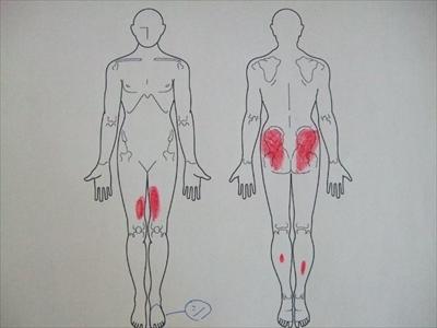 脊柱管狭窄症,足のしびれ