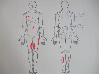 抗がん剤の副作用,四十肩・五十肩,腰痛