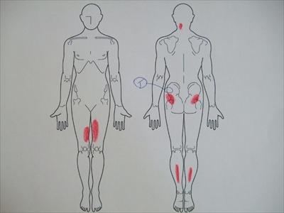 股関節痛,膝関節痛