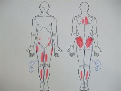 脊柱管狭窄症,足のしびれ,足の痛み