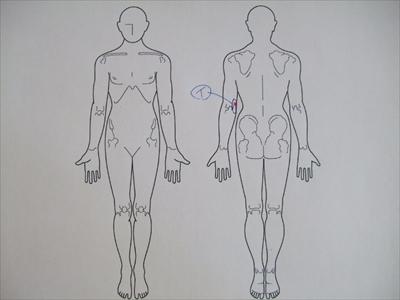 打撲,肘の痛み