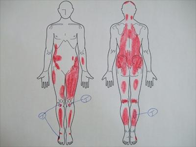 オスグッド病,成長痛,打撲,肉離れ