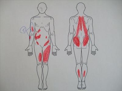 腕の痛み,全身の痛み
