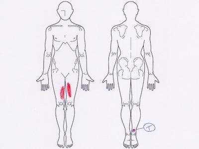 踵の痛み,アキレス腱炎,アキレス腱の痛み