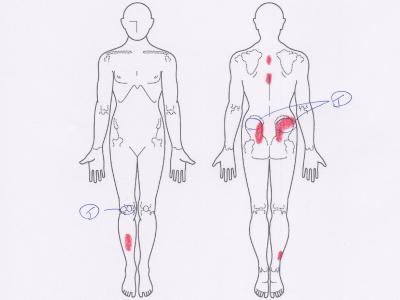 腰痛,お尻の痛み,膝の痛み