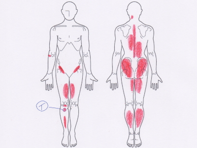 オスグッド病,成長痛,膝の痛み