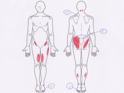肩の張り,肩こり,腰痛,足のしびれ