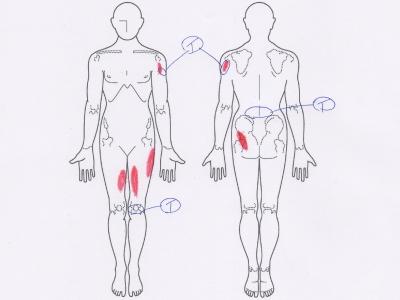 腰痛,四十肩・五十肩,腱板断裂,膝の痛み