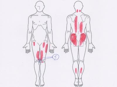 膝の痛み,オスグッド病