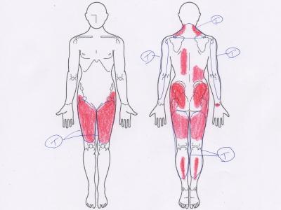 全身の痛み,足の痛み,腕の痛み,首の痛み,肩の痛み