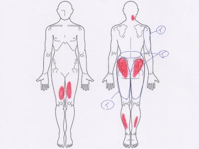 腰痛,臀部の痛み,足の痛み,腕の痛み,肩の痛み