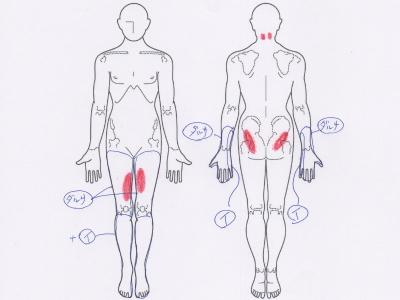 足のだるさ,足の痛み,腕のだるさ,腕の痛み