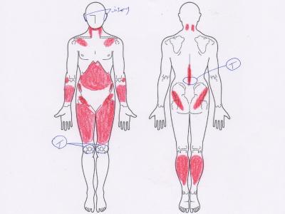 腰痛,膝の痛み
