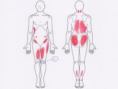 膝の痛み,変形性膝関節症
