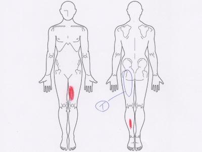腰痛,ぎっくり腰,おしりの痛み,足の痛み